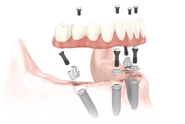 best dental implant center fro all four dental implants