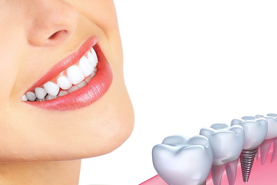 Best Dental implant center in vijayawada