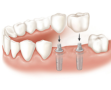 best dental implant center in vijayawada for mutliple teeth