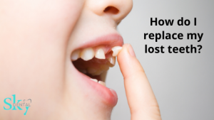 How do I replace my lost teeth?