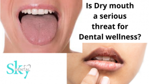 Is dry mouth a serious threat for dental wellness?