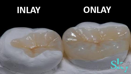 Inlays and Onlays