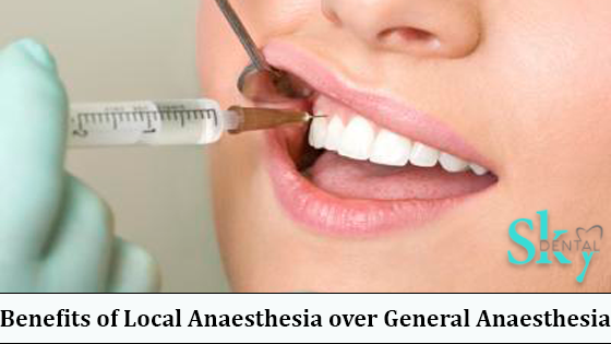 Local Anaesthesia over General Anaesthesia