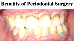 benefits of periodontal surgery
