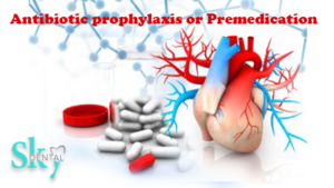 Antibiotic prophylaxis or Premedication