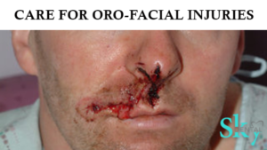 Care for Oro-facial injuries