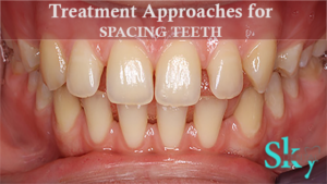 Treatment Approaches for spacing teeth