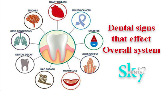 Dental signs that effect the overall health