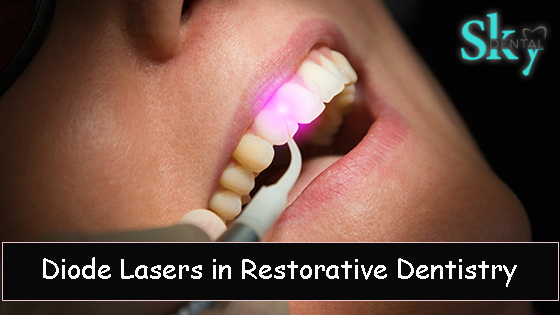 Diode Lasers in Restorative Dentistry