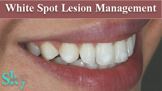 Management of white spot lesions
