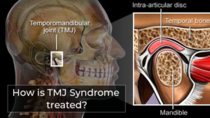 What is tmj syndrome and how it is treated?