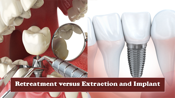 Retreatment versus Extraction and implant