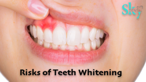 risks you need to know about teeth whitening