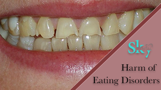 HOW EATING DISORDER CAN HARM YOUR TEETH?