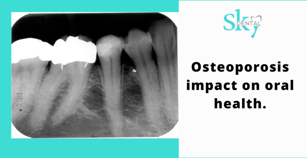 Osteoporosis impact on oral health